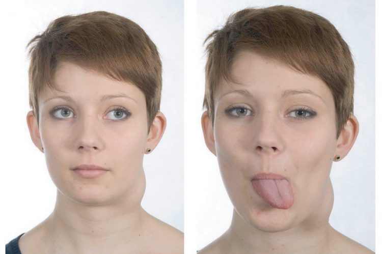 Figure 1: Pre-operative images demonstrating a left-sided branchial cyst and an ipsilateral hypoglossal nerve palsy.