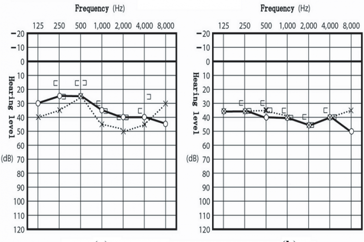 Figure 1: Audiogram of pure-tone audiometry. A difference of > 10 dB between the right (◦) and left ear (×) was detected at an 8-kHz frequency at (a) the initial visit (March 26, 2009) (b) but not at a follow-up visit, when the acoustic tumor was no longer visible on MRI (May 12, 2012).