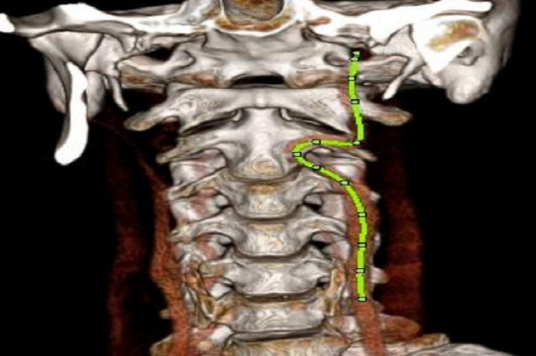 Figure 4: A 3D reconstruction of the CTA showing the path of the left ICA outlined in green and the lack of flow through the right ICA.