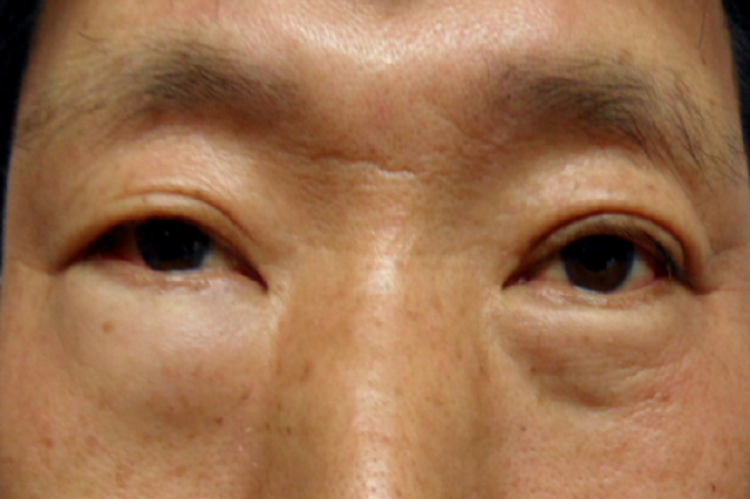 Figure 2: Clinical appearance of the patient showing lower eyelid swelling on the right.