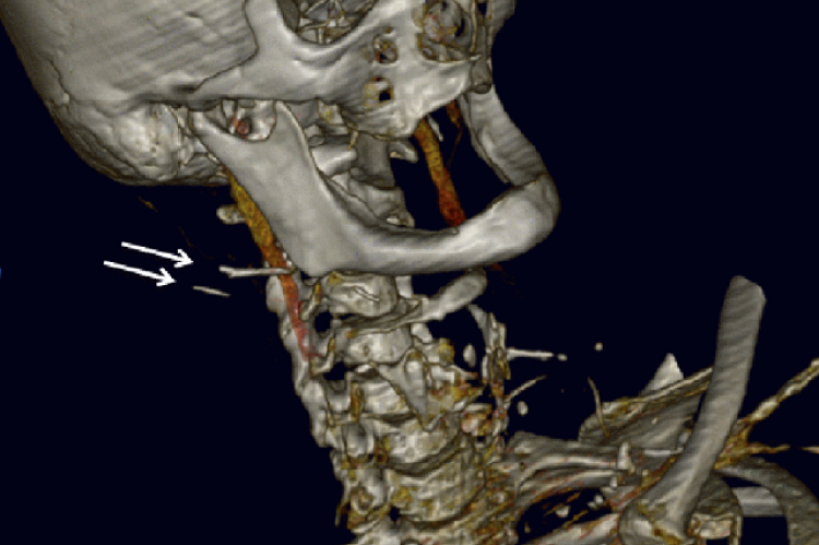 Figure 1: Computed tomography image with 3D reconstruction of the patient's head and neck. Arrows indicate what appear to be two metallic objects at the angle of the jaw on the right-hand side.