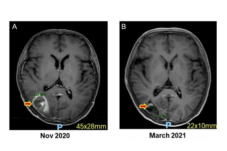 (A) Brain MRI showed right parietal-occipital hemorrhage suspicious from metastasis (Nov 2020). (B) The lesion remarkably subsided with very faint enhancement (March 2021).