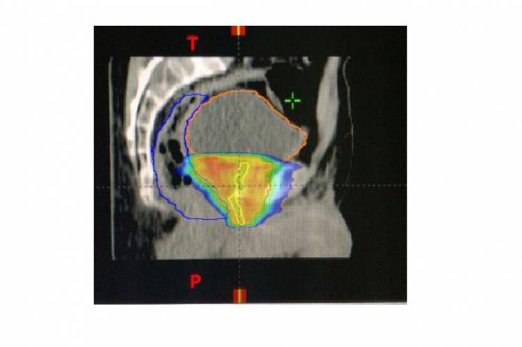 Isodoses distribution of prostate clinical target volume: CTV prostate.