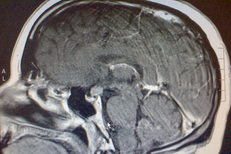 Figure 1: Sagittal post contrast MRI demonstrating contrast enhancing infundibular mass.