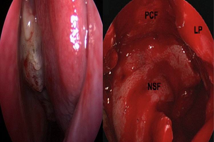 Figure 1: (a) Diagnostic left nasal endoscopy revealed a large mass medial to the middle turbinate extending to the sphenoethmoid recess. (b) Intraoperative endoscopic image depicting skull base reconstruction following tumor resection. LP: lamina papyracea; NSF: nasoseptal flap; PCF: pericranial flap.