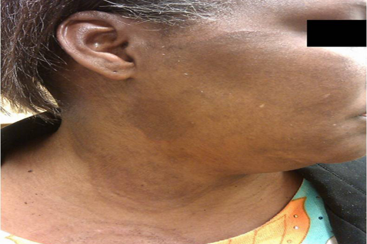 Figure 1: Skin changes of mycosis fungoides of the right cervical facial region.