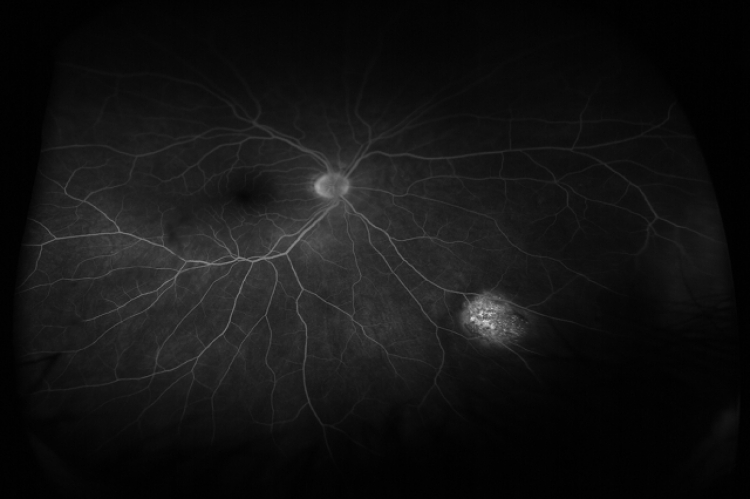 Figure 1: Fluorescein angiogram, right eye, early venous phase demonstrates stippled hyperfluorescence in the area of identified choroidal lesion.