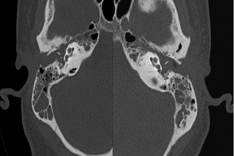 Figure 1: Noncontrasted axial CT images of right and left temporal bones. (a) The right ear was found to clinically demonstrate bacterial labyrinthitis. Note extensive mastoid and middle ear effusion with no evidence of bone destruction or other temporal bone abnormality. (b) Axial CT images of left temporal bone, also showing similar mastoid and middle ear effusion in the ear not clinically demonstrating labyrinthitis. Note similar radiographic findings between both ears with only the right ear showing cli