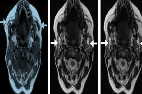 Contrast-enhanced MRI scan of the head and neck showing typical findings in Kussmaul disease