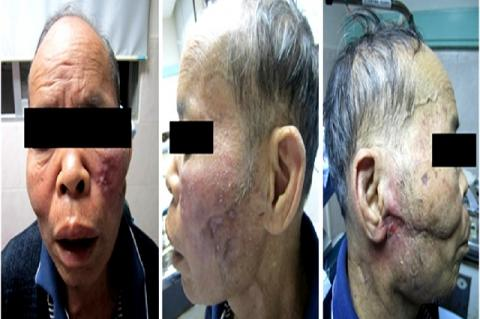 Clinical photograph showing proptosis in the patient's left facial skin and right ear skin was also present. Published with patient's permission