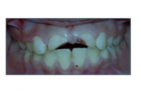 Management of Complex Crown Fracture using Fiber Post and Strip crowns: A Case Report