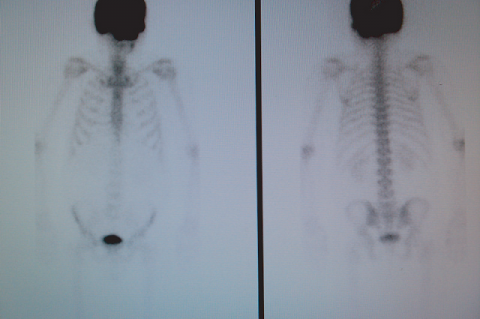 Figure 1: Antero-posterior view from bone scintigraphy showing intense technetium-99m diphosphonate uptake affecting the skull except the inferior maxillary bone.