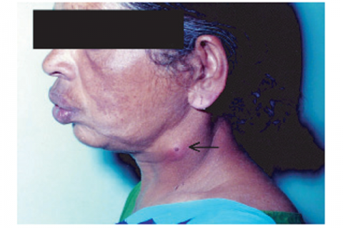 Figure 1: Neck abscess with tip of foreign body.