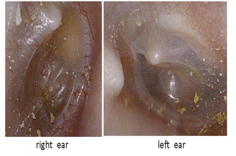Figure 1: Macroscopic findings of the right (left panel) and left (right panel) ear during the operation. Otoscopy reveals an opacity in the anterosuperior quadrant of the right membrane and a flat, smooth, white mass in front of the short process of the malleus on the superior wall of the left bony external auditory canal.