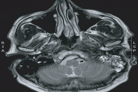 Figure 1: MRI head, revealing diffuse pachymeningeal enhancement and abnormal enhancement of the right facial nerve.