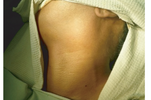 Figure 1: At presentation, a 7×4 cm firm swelling is seen at the left carotid triangle.