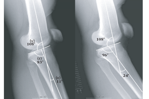 Figure 1: Preoperative lateral X-ray. Genu recurvatum deformity is evaluated as the angle between the lines of the anatomical axis of the distal part of the femoral shaft and that of the tibial shaft (x). (a) Normal side shows an 11 ° extension. (b) Injured side shows a 24 ° genu recurvatum deformity. The angle between the lines of the anatomical axis of the distal part of the femoral shaft and the plane of the tibial plateau (y) is identical to that of the normal side, and the posterior tilt angle of tibia