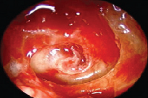 Figure 4: Intraoperative image noting the cochlea after translabyrinthine excision of ICS.