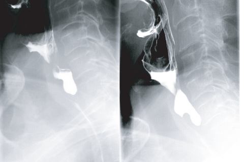 Figure 1: Preoperative barium swallow demonstrating moderate-sized diverticulum from region of cricopharyngeus and cervical esophagus.