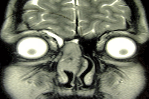 Figure 3: MRI shows the mass occupying the right nasal cavity and abutting dura.