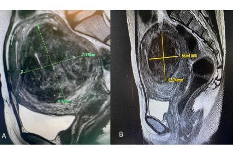 MRI image of a fibroid