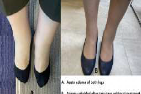 (A) The appearance of severe lower edema of both legs after GnRH-a injection. (B) Edema subsided in both legs after two days of mobilization and a low salt diet without medication