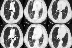 Computer tomography of the chest showing the preoperative aspect of the lung (A,D), the presence of an upper left adenocarcinoma (A), and the radiological aspect of the same sections at the hospital readmission (B,E) performed ten days after discharge which evidence of diffuse ground glass opacities. (C,F) represent computer tomography of the chest performed eleven days after readmission and antibiotic and steroid therapy and non-invasive ventilation showing the disappearance of ground glass opacities.