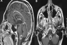 T1-weighted magnetic resonance imaging of the brain [(A) sagittal plan; (B), axial plan] showing a 1.8 cm peripherally enhancing metastatic lesion of the brainstem.