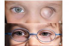 (A) Initial presentation: left eye with white opaque cherry-sized protrusion. (B) Final result with prosthesis